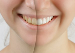 Close Up Of Teen Girl's Teeth Before and After Teeth Whitening Side By Side